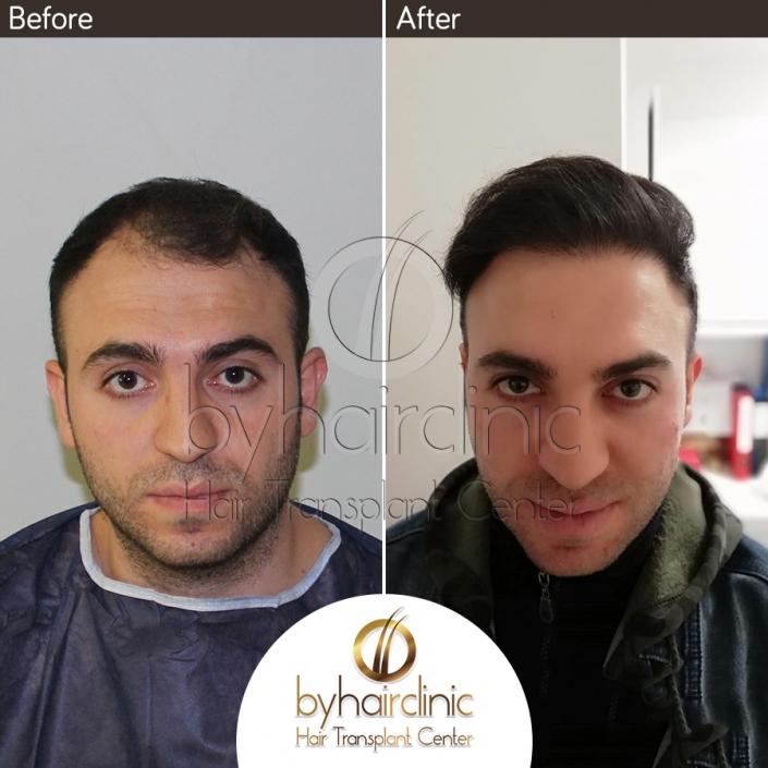Haartransplantation Türkei Vorher und Nachher