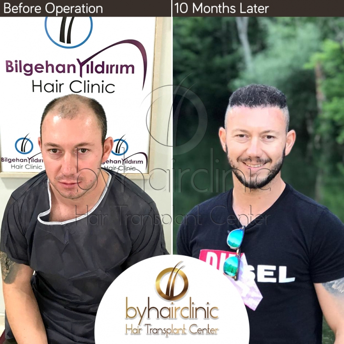 hair transplant turkey before after