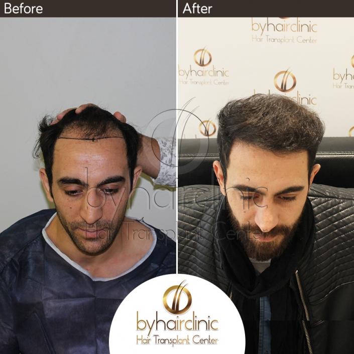 Greffe De Cheveux Turquie Avant et Après