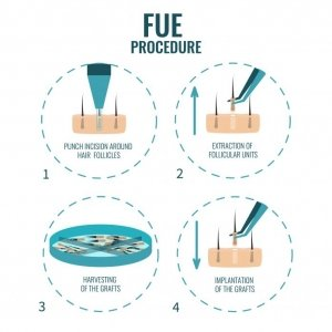 fue procedure turkey