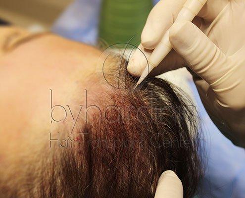 DHI Greffe De Cheveux Non Rasés
