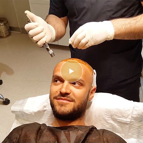 Hair Transplant Process