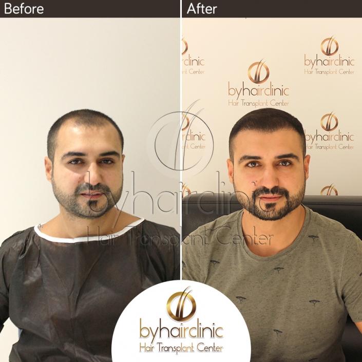 نتيجه عملية زراعة الشعر