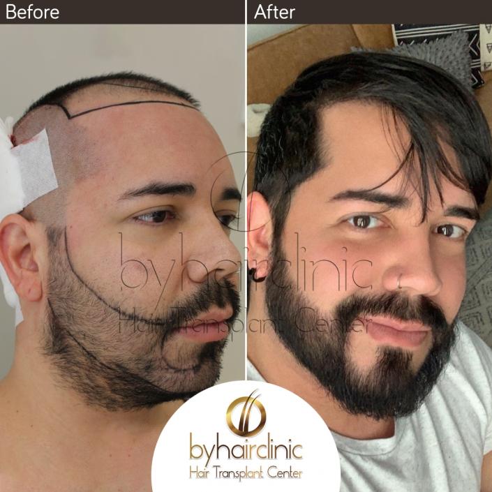 Résultat de greffe de cheveux et de barbe