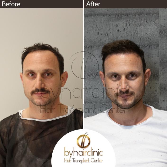 Résultat de Greffe de Cheveux