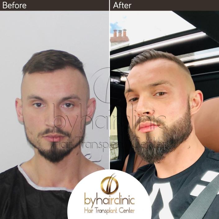 Résultat de Greffe de Barbe